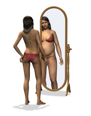anorexia nervosa