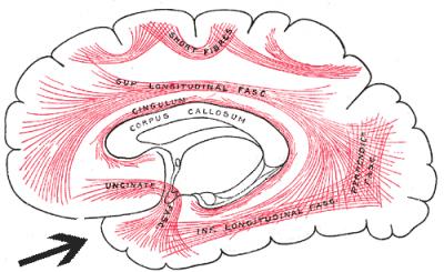 Unincate fasciculus